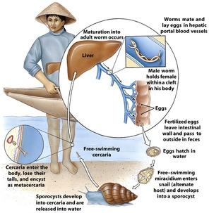 Schistosomiasis symptomen Enfermedad helmintica - Humaan papillomavirus ziektebeeld